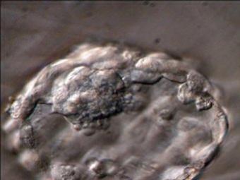 Embrió inviable per a la reproducció a partir del qual es poden extreure cèl·lules mare AVUI