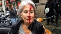 Una de les ferides per la càrrega policial a l'escola concertada Infant Jesús de Barcelona l'1-O